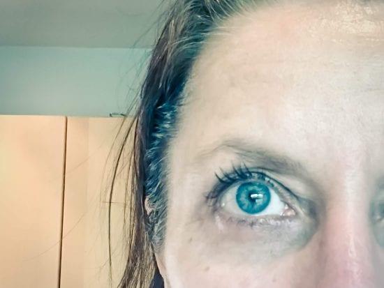 eye with dark circles