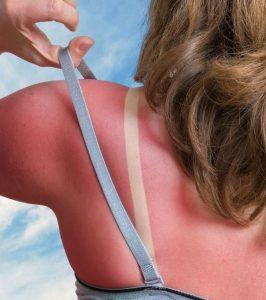 sunburn on woman's back