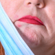mascne or maskne on chin